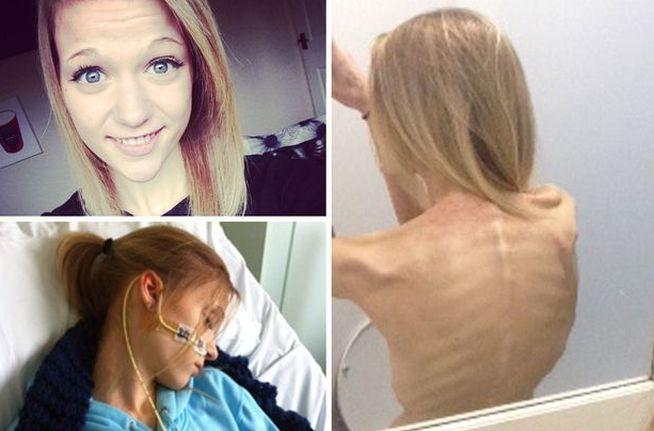 anorexia en instagram